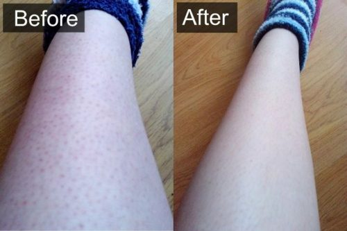 How To Get Rid Of Ingrown Hairs On Your Legs