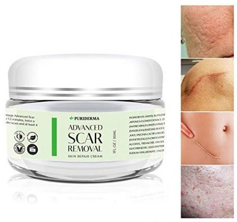 Top 10 Best Scar Gels In 2020 Reviews Buying Guides